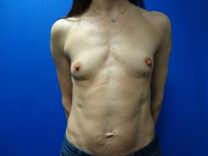 Manhattan Breast Augmentation Before 8